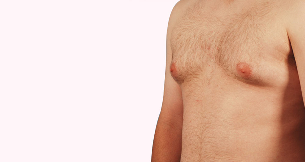 Do you need Gynecomastia Surgery? 7 Ways You Can Be Certain