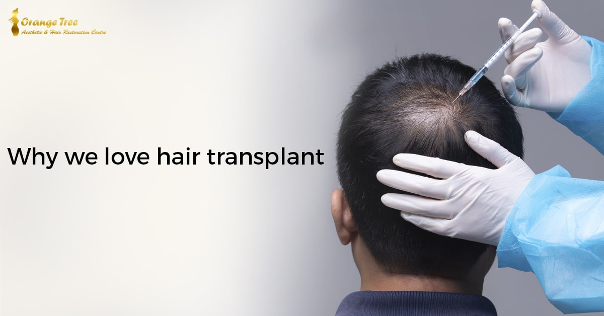 Why We Love Hair Transplant (And you should too)