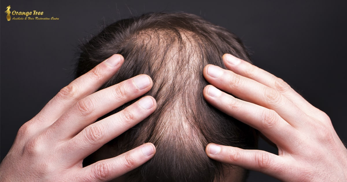 Why Most Clinics Don't Prioritize Hair Restoration for the Temples