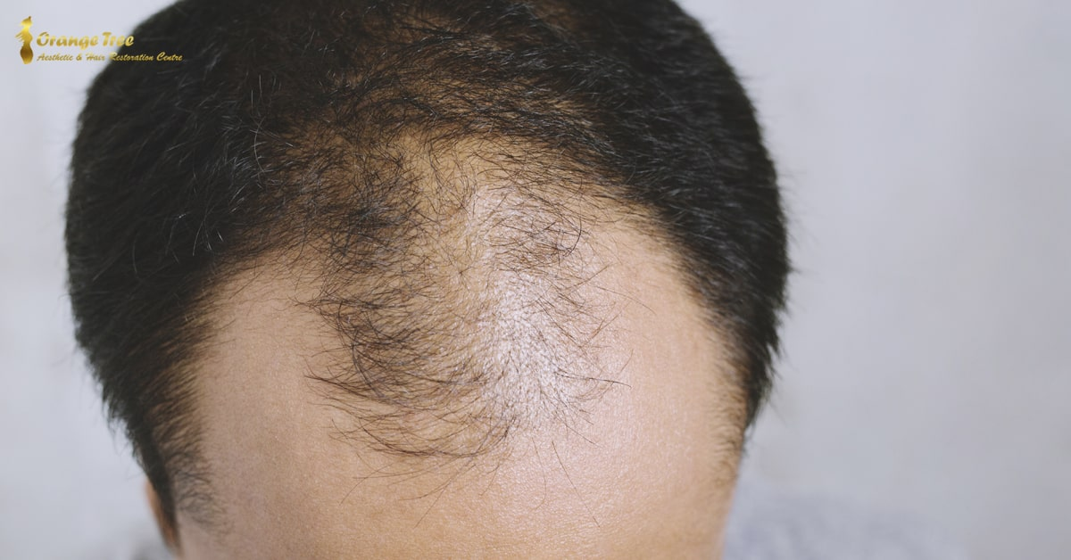 Hair Transplant for Crown Area Baldness
