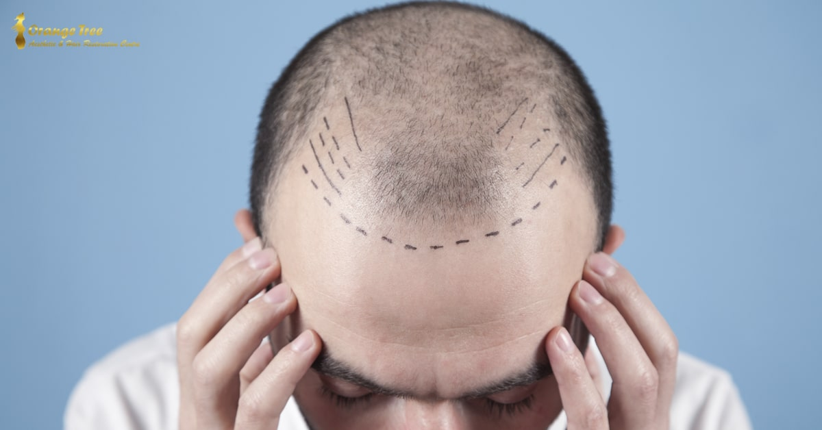 Hair Transplant for Crown Area